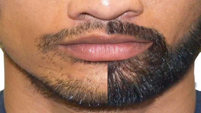 ریش سبیل 1 کاشت ریش
