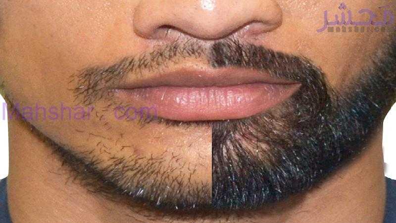 ریش سبیل 16 کاشت ریش