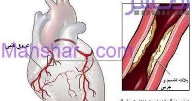 heart plaque 21 خیلی خیلی خیلی مهم ،باز کردن عروق قلب بدون جراحی