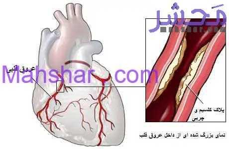 heart plaque 9 خیلی خیلی خیلی مهم ،باز کردن عروق قلب بدون جراحی